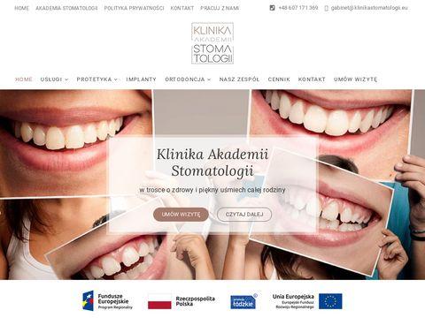 Klinikastomatologii.eu korony zębów