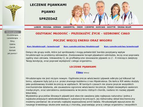 Abcpijawek.pl Leczenie pijawkami - stawianie pijawek