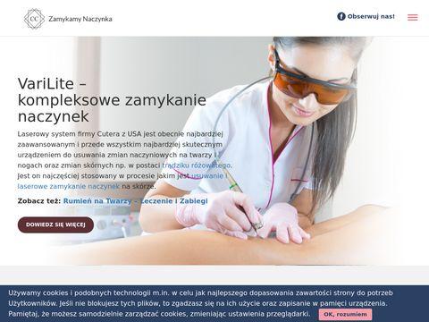 Zamykamynaczynka.pl