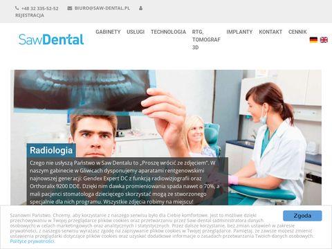 Saw-dental.pl stomatolog dziecięcy Gliwice