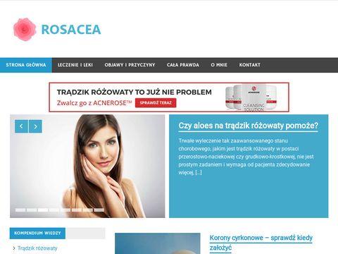 Rosacea.net.pl trądzik różowaty kompendium