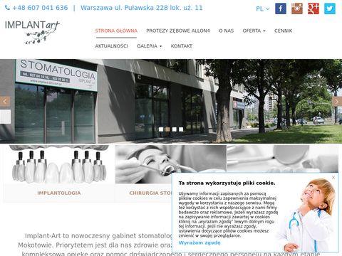 Implant-art.com.pl - dentysta Mokotów
