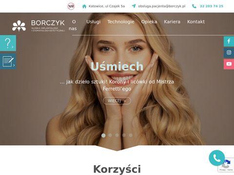 Klinika Borczyk wybielanie zębów beyond