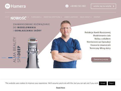Drhamera.pl - usuwanie żylaków Szczecin