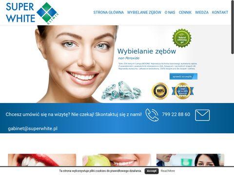 Superwhite.pl gabinet wybielania zębów - Poznań